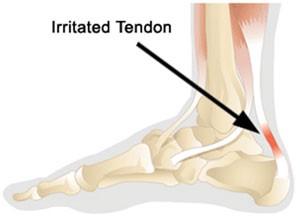 Achilles Tendonitis Premier Orthotics Lab