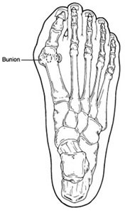 Bunions Premier Orthotics Lab