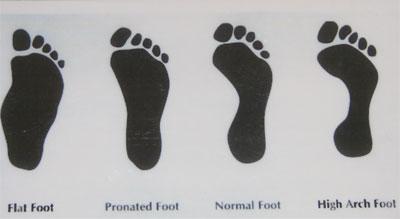 Foot Problems | Premier Orthotics Lab